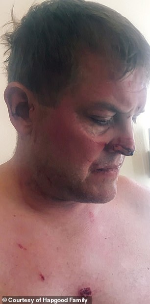 Scott Hapgood is shown in an image taken after his fight with Mitchel