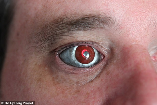The camera in the prosthetic is not connected to Mr Spence's optic nerve ¿ so it does not restore the vision in his right eye. However, the device can capture everything it sees and transmit the video to a receiver from where it can be recorded, played on a screen or uploaded