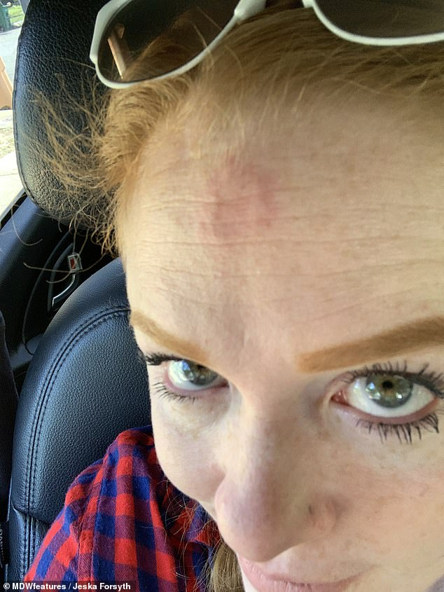 Jeska Forsyth was diagnosed with skin cancer three times in three years after she initially mistook an abnormal skin lesion on her forehead (pictured) for acne for six years