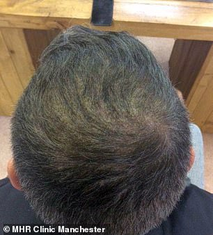 Two weeks after the hair transplant