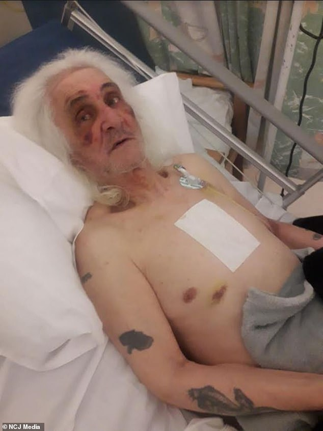 John Gray (pictured in hospital), from Ormesby near Middlesbrough, was injured so badly that nurses told his daughter they 'can't understand how he's still alive'