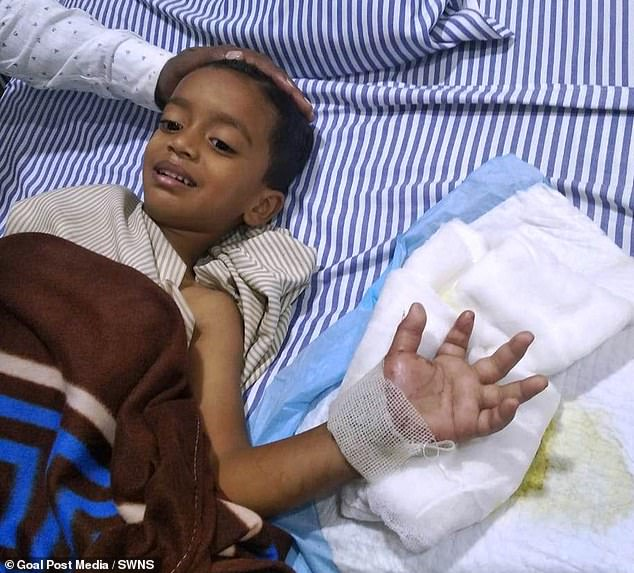 Shaurya Undrehad his whole hand reattached after slicing it off with his father's lawn mower