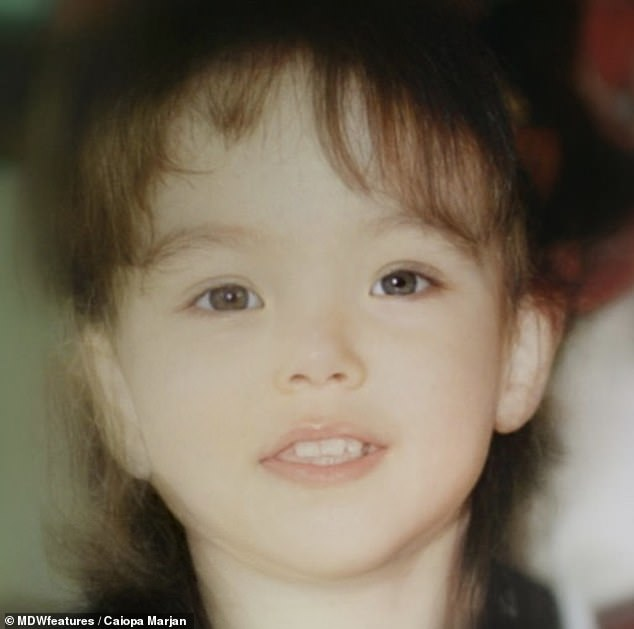 Looking back: Caipoa (pictured as a child)has struggled with excess hair all over her body (hirsutism), a deeper voice, being overweight, acne, and a receding hairline her whole life