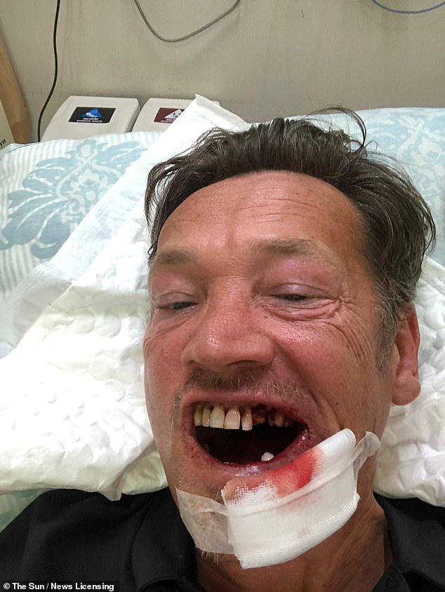 PICTURED: Sid Owen, 48, unveiled the gruesome aftermathof a freak golf accident in Thailand on January 17 which SHATTERED his jaw and knocked out SIX teeth