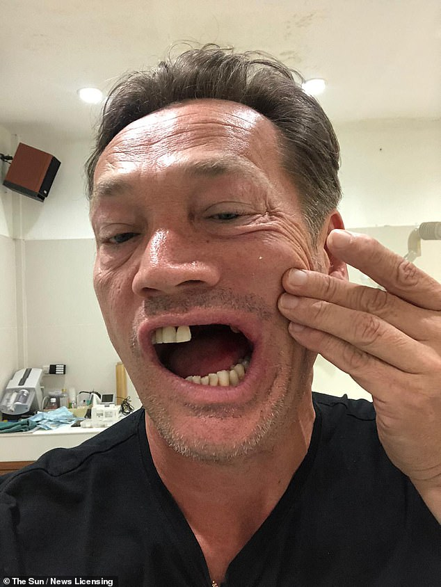 Cleaned up: The EastEnders actorhas undergone emergency surgery on his jaw and teeth is disallowed to fly home from Thailand while awaiting brain scan results and further surgery