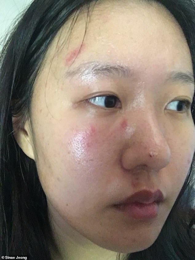 Sinar Jeong, 27, was left with scratches above her eyes and on her cheek following the attack after 10.45pm on Friday