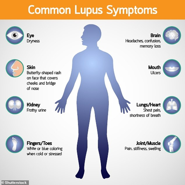 'As stillbirth is now a known risk factor for Lupus, GPs should be aware of this when seeing their patients' investigation results,' said Professor Heazell. 'Women should also be vigilant and look out for symptoms of Lupus which include joint pain, muscle pain and chronic fatigue'