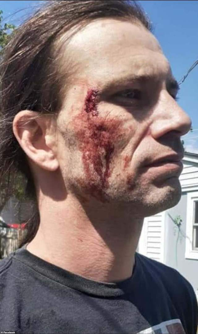 In another image on social media, a second protester is pictured with blood on his face after he was reportedly 'sucker-punched from behind'