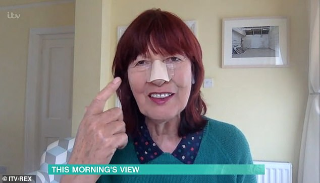 Recovering:The presenter even joked about her plaster, revealing she changed it specially for her TV appearance and added that she'll be taking it off before Loose Women on Wednesday
