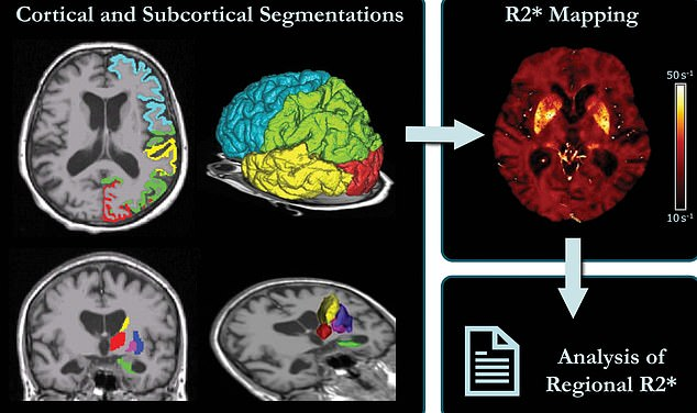Schematic representation of MRI processing. Left: Cortical and subcortical segmentations. Right: brain map corrected for macroscopic field inhomogeneities, where median values were calculated for each region and then used for further statistical analyses