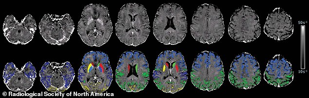 'Brain map' of one study participant superimposed with cortical and subcortical segmentations