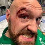 Tyson Fury hands financial support to cut man from Otto Wallin victory