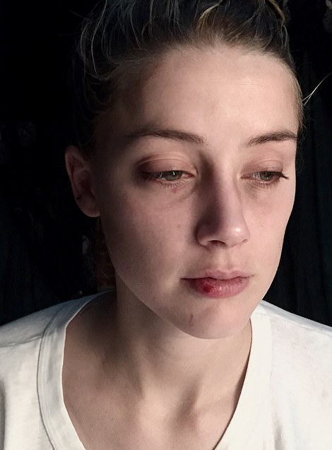 Photos after the December incident show bruising to Heard's face after Depp allegedly headbutted her. The trial is hearing evidence about 14 such incidents