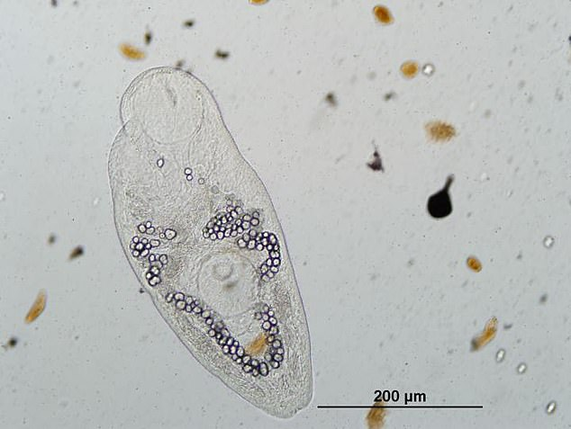 Pictured,Ribeiroia ondatrae, which is a parasite that causes amphibian limb malformations. None of the parasites that infect humans or domesticated animals are included in the researchers' conservation plan