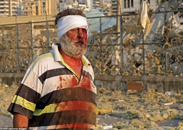 A wounded man walks near the scene of an explosion in Beirut