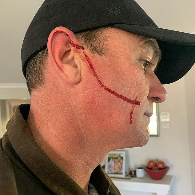 Shannon Noll shows off his shocking injury after an accident on his farm