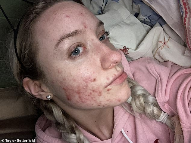 Taylor Setterfield, 20, from Chichester, has told how a £12.95 natural silver serum helped to clear her skin in just four weeks. Pictured, before May, 2019