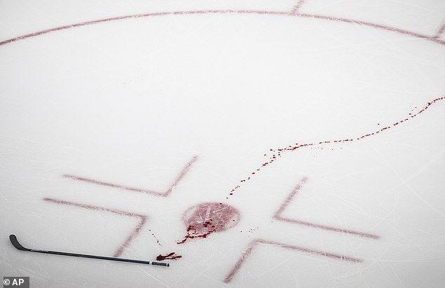 Blood from Winnipeg Jets' Tucker Poolman leaves a red trail on the ice after he was helped off during the second period