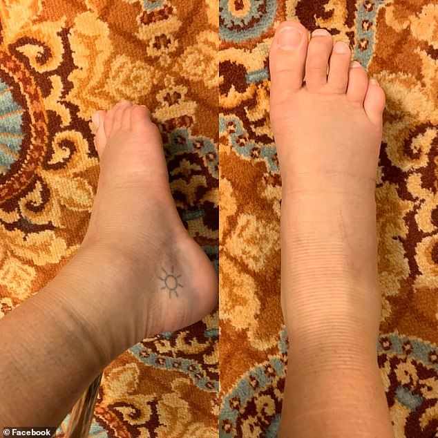 Ouch!Nicole was not able to dance for eight months as she went though physiotherapy to recover from her multiple torn ligaments