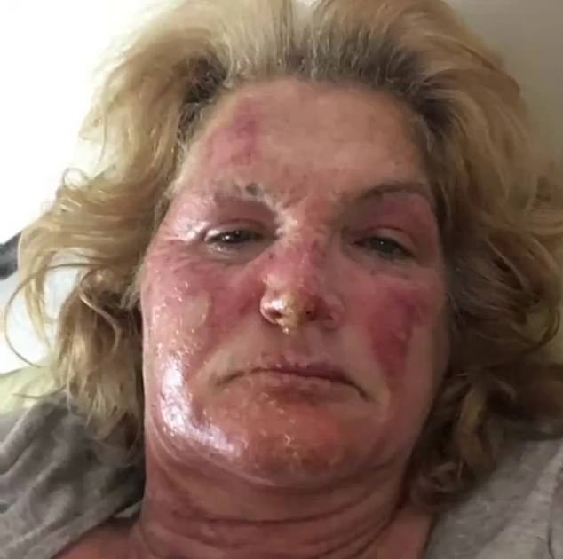 Sydney woman Denise Lavell, from Canterbury, (pictured) suffered severe burns to her face, hands and ankles after a homemade bomb allegedly meant for someone else was left outside her home