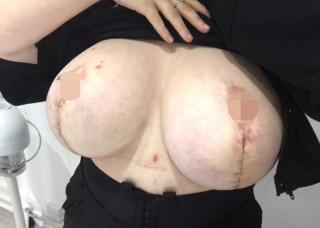 After he saw her nipple for the first time after surgery, Shannon said the surgeon removed it and left it hanging on by one thread