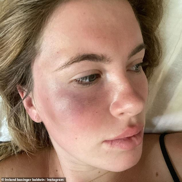 Horrific: Sharing two photos of her bruised face last month, Ireland revealed on Instagram: 'Yesterday in the late afternoon, I was attacked by a woman'