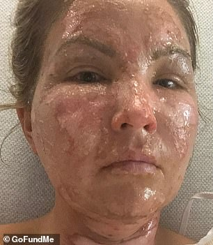 Wise on Sunday suffered horrific burns to her face and body (pictured in the ICU) when a bottle of hand sanitizer came into contact with fire and blew up