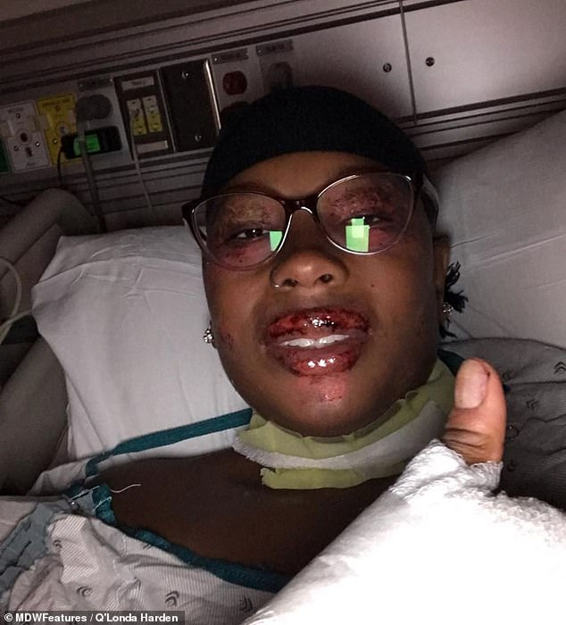 The condition has not only affected Q'Londa physically, but also mentally and she frequently questions why she has been chosen to go through this