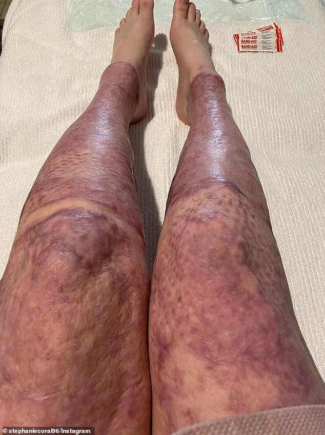 Ms Browitt's skin colour on her legs is shown returning to form in a picture dated 15 July