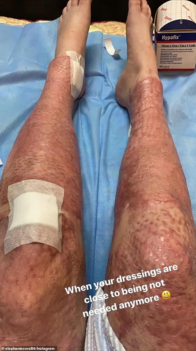 Ms Browitt took to Instagram to show a recovery sequence of her legs from the burns. Photo from 27 April