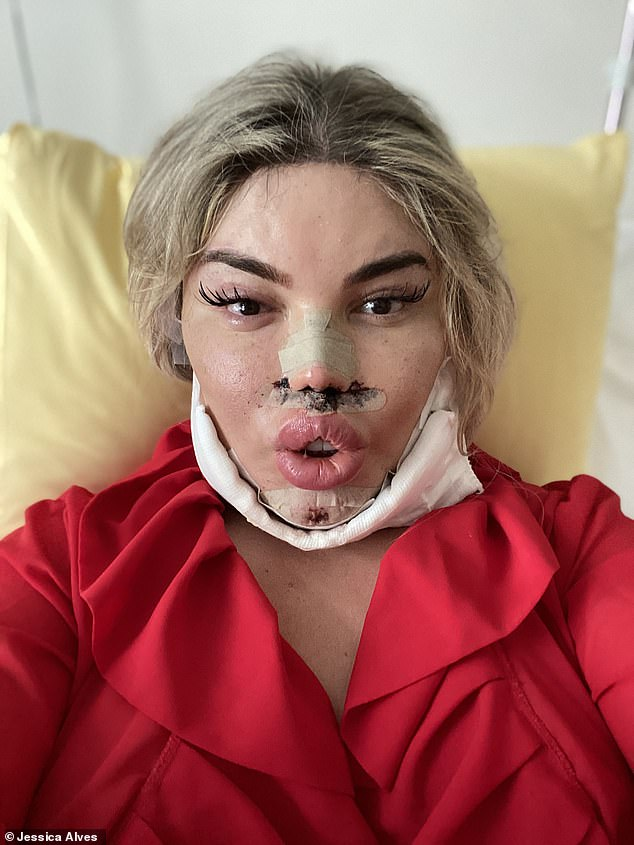 Procedure: The reality personality, 37, admitted she wanted to make her chin 'pointier' after seeing others have the same procedure when she got her lashes done in Essex