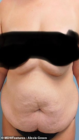 See the difference? Alexis had a tummy tuck with micro liposuction and a breast lift
