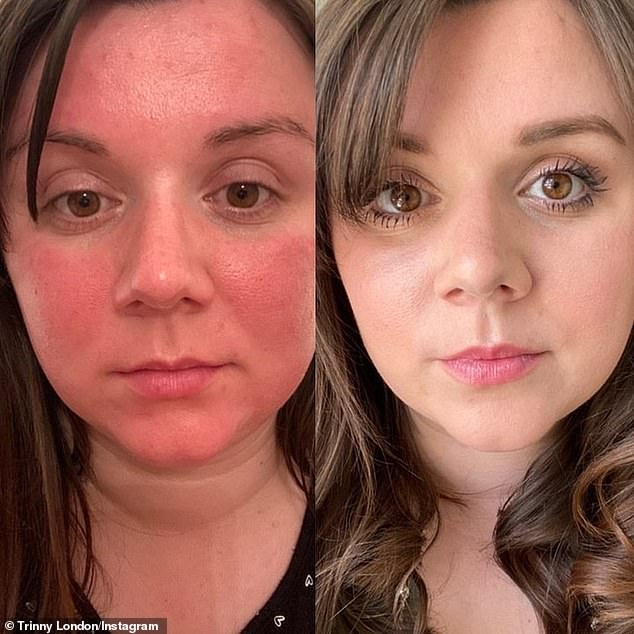 Makeup expert Trinny Woodall's BFF Cream has been heralded a 'game changer' and the 'ultimate skin protector' by women since it launched two years ago (pictured before and after)