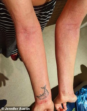 The Australian £8 product, available in the UK, which behavioural researcher Jennifer uses twice a day to help soothe her body, is a natural formulation cream that was originally formulated for cows' udders. Pictured: Jennifer's arms before using the product