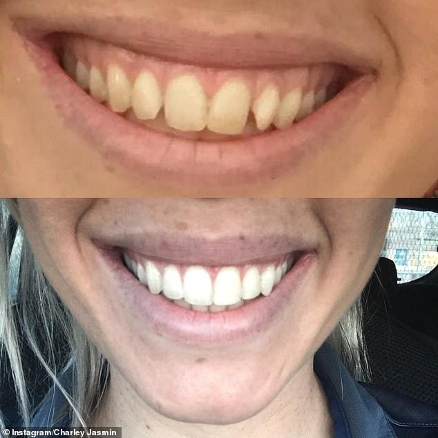 New chompers: In October 2018, the blonde posted to Instagram a before-and-after picture of her teeth after getting them straightened and whitened
