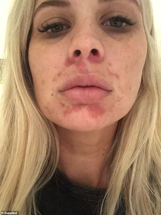 The MooGoo Eczema and Psoriasis Cream and Natural Soothing MSM Moisturiser helped clear her inflamed skin after two to three months, but the area around her nose took an additional four weeks