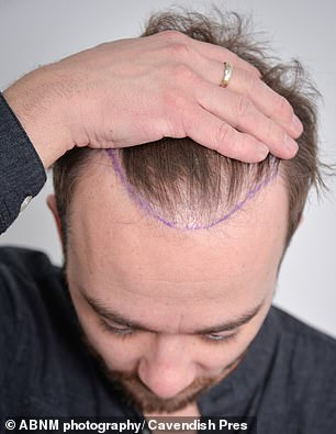 That was then... He previously revealed that his thinning locks put strain on his mental health