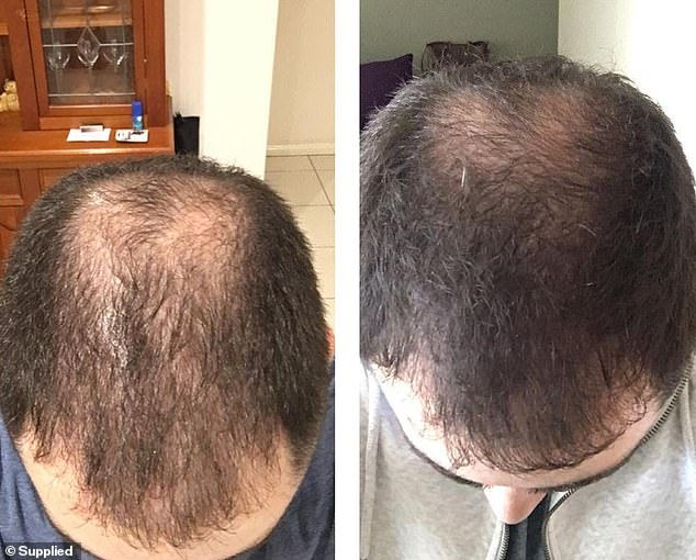 'We know that having a quick fix is not the only solution and value a holistic approach too,' Trung said (three week difference using the spray)