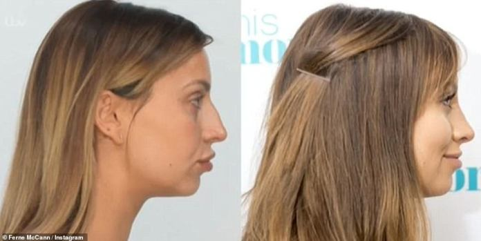 Changing:In 2016, Ferne revealed she had a nose job, which she unveiled the results of during an appearance on This Morning after the operation