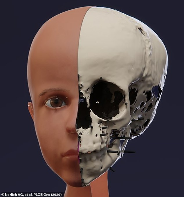 Nerlich and the other researchers started with the child's eyes and reconstructed them based on a mean eyeball diameter of 22 mm, adjusted to take into account the age of the individual. They were then fitted in the sockets of the 3D skull