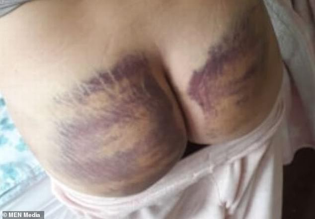 The former Lincoln City youth player, who had spells with the likes of York City, North Ferriby United and Guiseley, was jailed in April 2019 for battering his former girlfriend Danielle Thomas (pictured, some of her injuries)