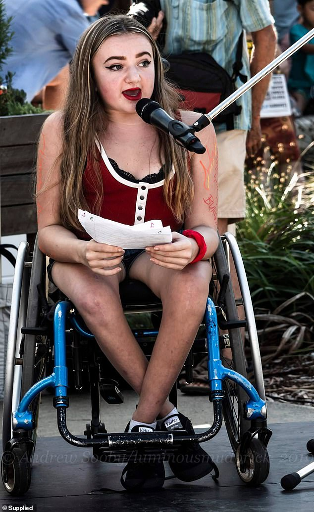 Beth Cooper-Wares, 17, (pictured) was born with Osteogenesis Imperfecta (OI) Type III - a severe form of brittle bone disease