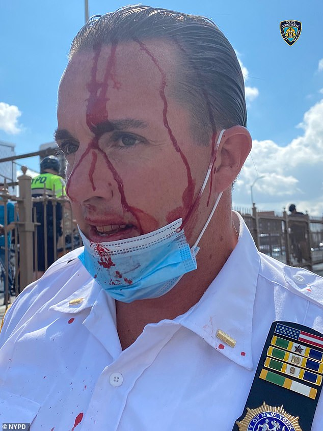 A lieutenant is covered in blood on Brooklyn Bridge after clashes with Black Lives Matter protesters