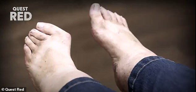 Removing Susan's shoes, Dr Schaeffer is 'shocked' to see her toes (above) curling over one another, while an enormous structure appears to be sticking out of the side of her foot