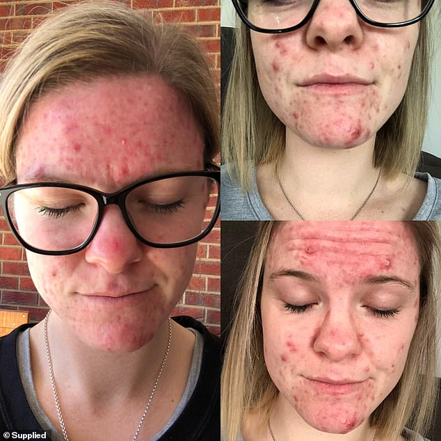 Every inch of her face was covered in deep, red and tender bumps, as she was unable to leave the house without applying makeup hide her face