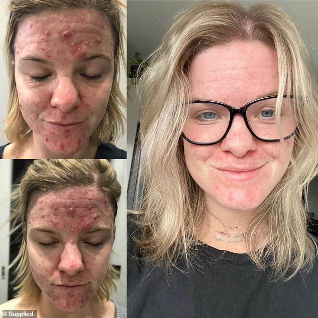 Erica (pictured), from regional Victoria,has revealed how she dramatically improved her skin in just months after she discovered a mineral skincare range on Instagram