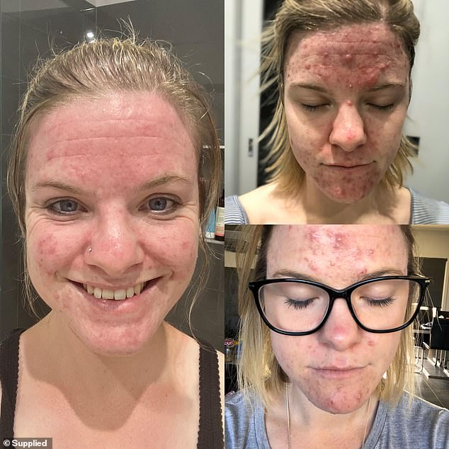 Erica noticed her skin started to clear up between four to six months of using the products