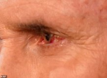 Experts Worried VP Pence Might Have Coronavirus After Appearing at Debate With Bloodshot Eye