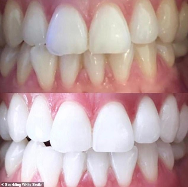 Alison Egan, from Sydney, came up with the idea for Sparkling White Smile when she was just 21 years old and decided she wanted her own teeth whitened (a client transformation pictured)