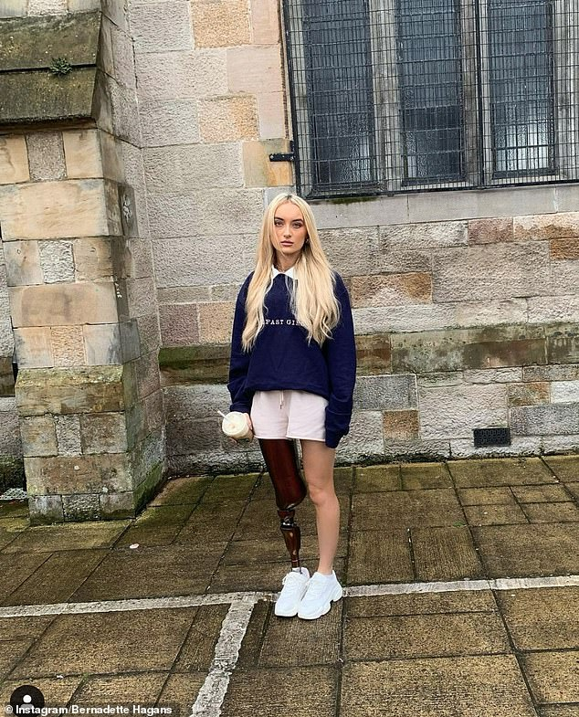 The modelbagged a contract with retailer Primark, and has since modelled for luxury British footwear and accessories brand Kurt Geiger